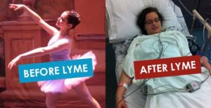 Lyme before after pic